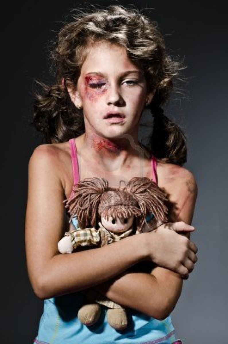 Showing photos of domestic violence injuries with no watermark - ImageGator