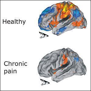 brain_pain